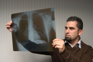 Fernando Herrera, a former worker at a California flavoring plant has been told that 70 percent of his lungs have been damaged by diacetyl exposure.  Photo by A. Schneider