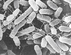 salmonella   Photo CDC